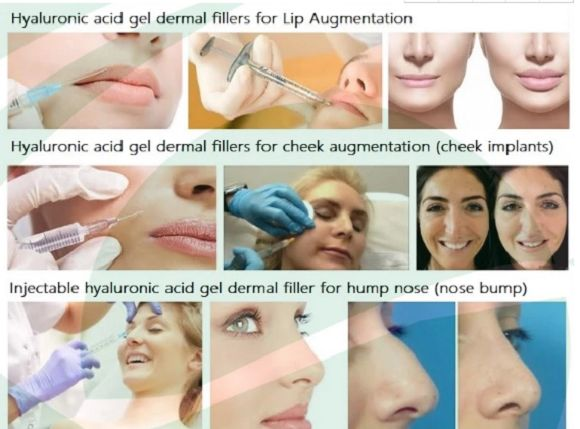 Hyaluronic acid Dermal Filler ,HA dermal filler Plastic Surgery